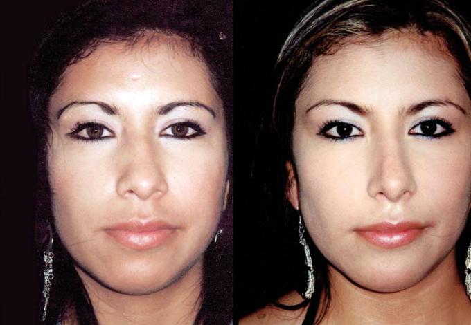 Mentoplastia y Rinoplastia de aumento, aumento de dorso óseo y cartilaginoso y punta nasal.
