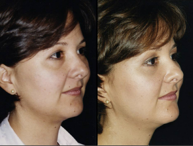 Blefaroplastia inferior sin resección de piel. Resultado al año
