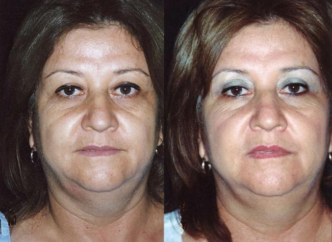 Cirugía de párpado superior + desgrasamiento de ceja. Resultado a los 7 meses