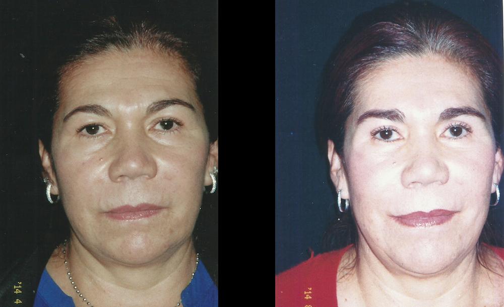 Blefaroplastia superior e inferior + elevación de cejas