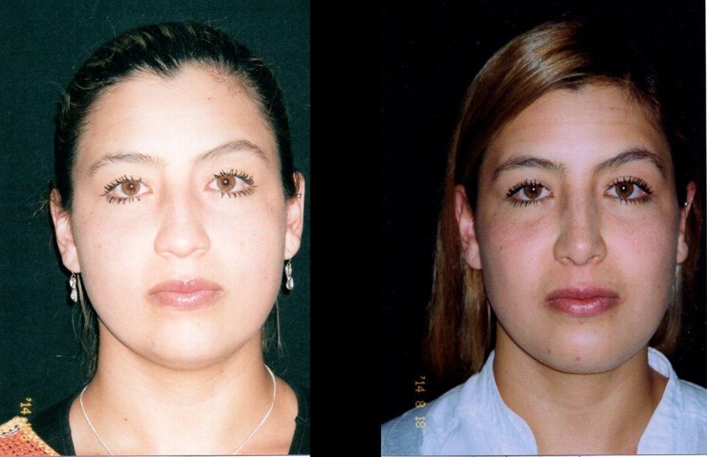 Mentoplastia más adelgazamiento de cachetes, Cirugía multiple de cara y rinoplastia. Resultados a los 8 meses.