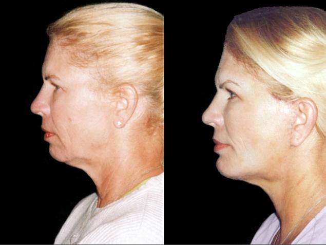 Implante de mentón + Elevación de cejas + rejuvenecimiento de cuello y mejillas Antes