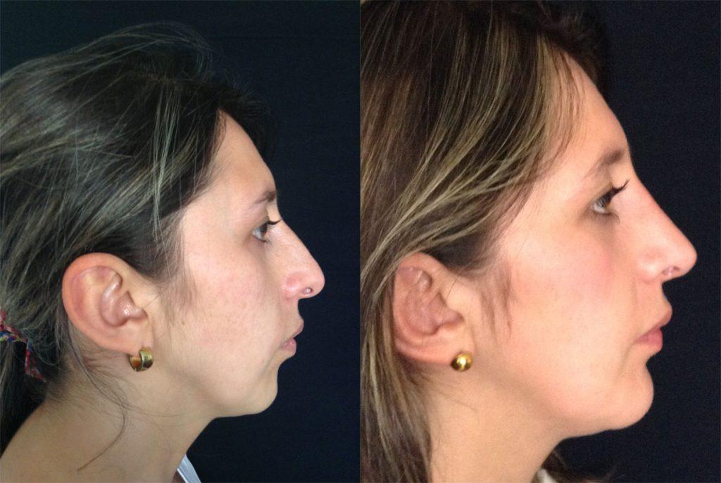 Mentoplastia + Rinoplastia + Cirugia multiple de rostro – Resultado a los 3 meses
